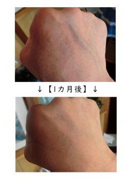 エルゴクリームの臨床試験結果