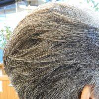 薄毛や白髪の素朴な疑問・・・(^^;)